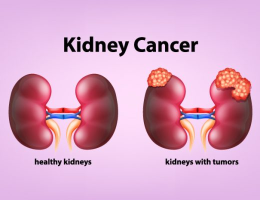 Kidney Cancer: Symptoms, Causes & Diagnosis Treatment