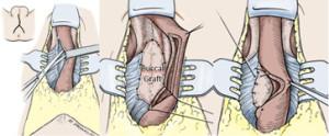 Reconstructive Urology