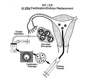 Reproductive Medicine (Infertility / IVF)