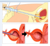 surgery for prostate