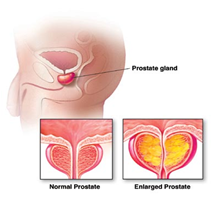 Enlarged Prostate Causes, Symptoms, and Treatments in Bangalore | NU Hospitals India