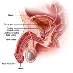 Male Urethral Stricture Disease