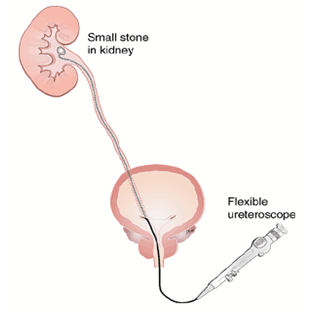 Kidney Stone Removal Laser Treatment in Bangalore | Laser Lithotripsy Surgery