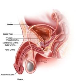 Management of Urethral Stricture Disease | NU Hospitals Blog