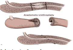 Anastomotic Urethroplasty