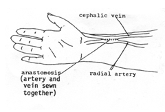 Arterio Venous Fistula | AVF | NU Hospitals Blog