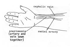 Arterio Venous Fistula | AVF | NU Hospitals Blog