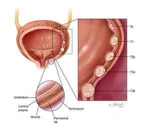 Urinary Bladder Cancer Treatment in India | NU Hospitals Blog