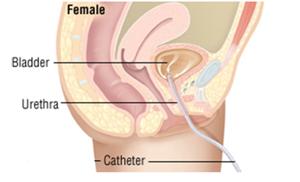 Clean Intermittent Self Catheterisation Female-CISC - FEMALE - NU Hospitals
