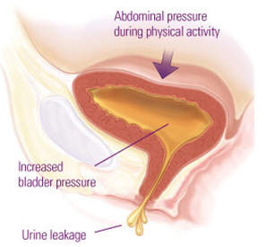 Urinary incontinence Treatments in Bangalore | Urinary Stone Surgery
