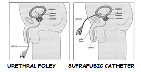 Care of Urethral Foley/Suprapubic Catheter at Home | NU Hospitals