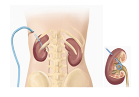 Percutaneous Nephrostomy Catheter Care At Home - NU Hospitals