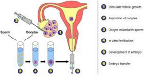 Overview Of IVF Treatment