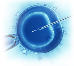 Intracytoplasmic Sperm Injection - NUHospitals