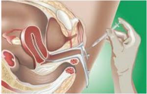 IUI- Intrauterine Insemination