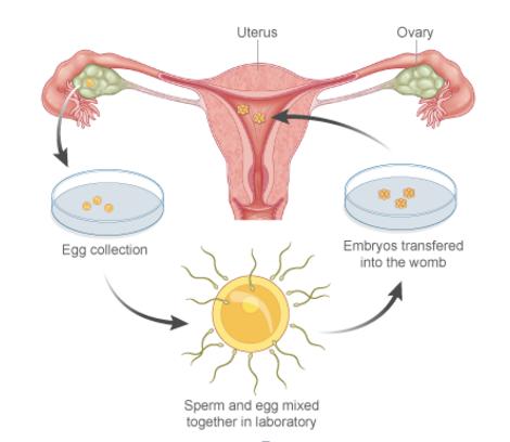 In vitro fertilization controversy essays