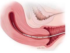 IVF Treatment in Bangalore