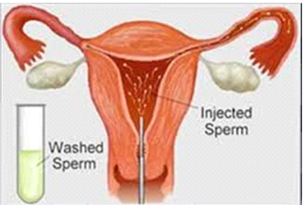 Intrauterine Insemination in India | IUI Fertility Treatment in India | IUI Treatment in Bangalore | NU Hospitals